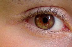 Stan zapalny wewnątrz gałki ocznej po wstrzyknięciu antybiotyku do ciała szklistego i bez tej ochrony